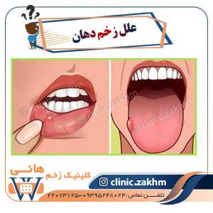 علل زخم دهان